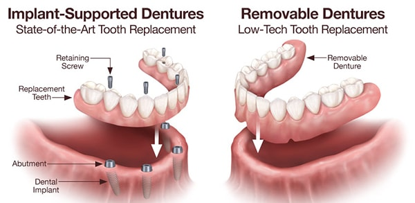 implant dentist in kennewick, wa
