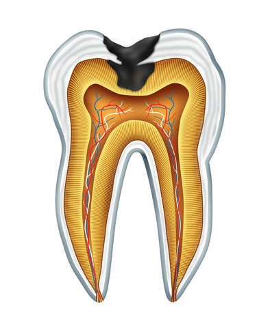 tooth decay in kennewick, wa