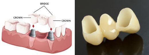 dental implants kennewick, wa