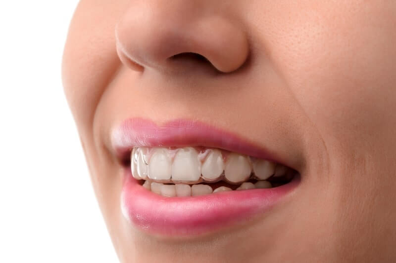 invisible braces in kennewick, wa