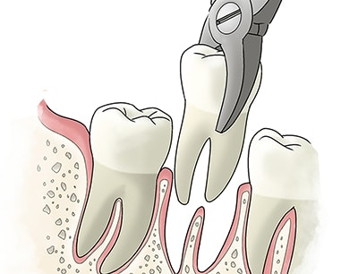 tooth extraction in kennewick, wa